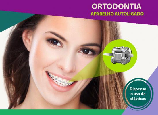 Aparelhos_Ortodonticos_01.png