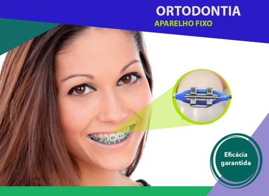 Aparelhos_ortodonticos_03.png